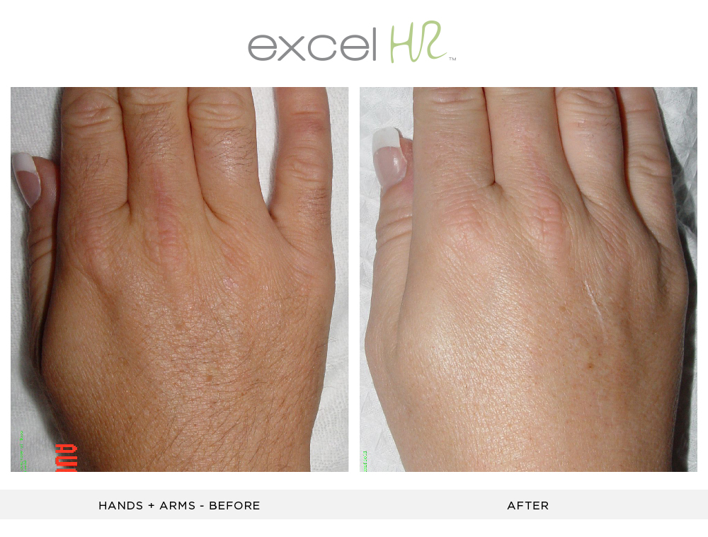 Before and After Laser Hair Removal hands