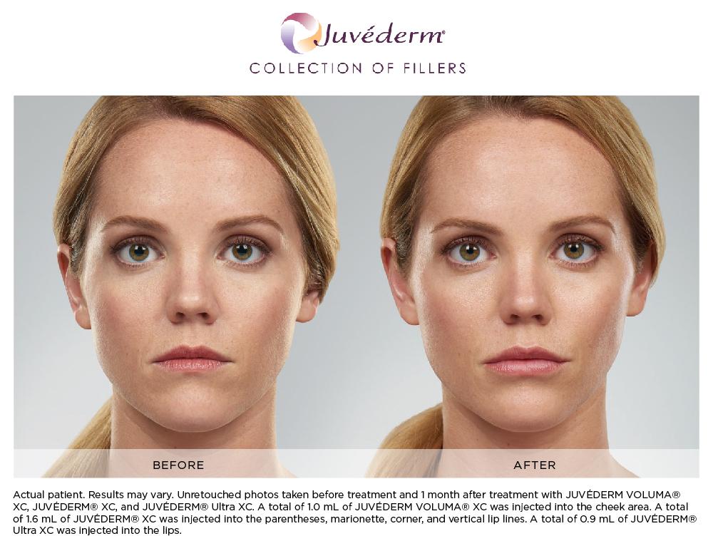 Botox + Fillers | INTERLOCKS | Salon, MedSpa, Wellness