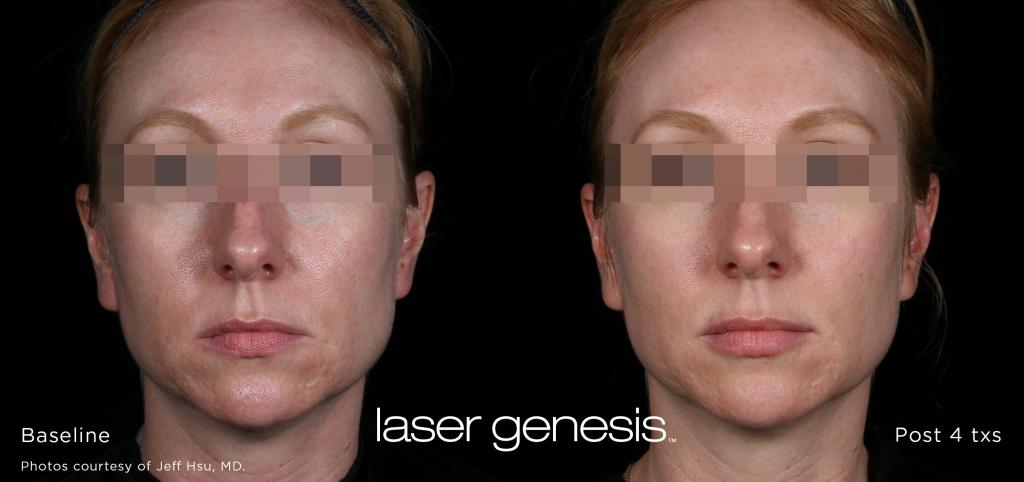 Laser Genesis Interlocks Salon Medspa Wellness