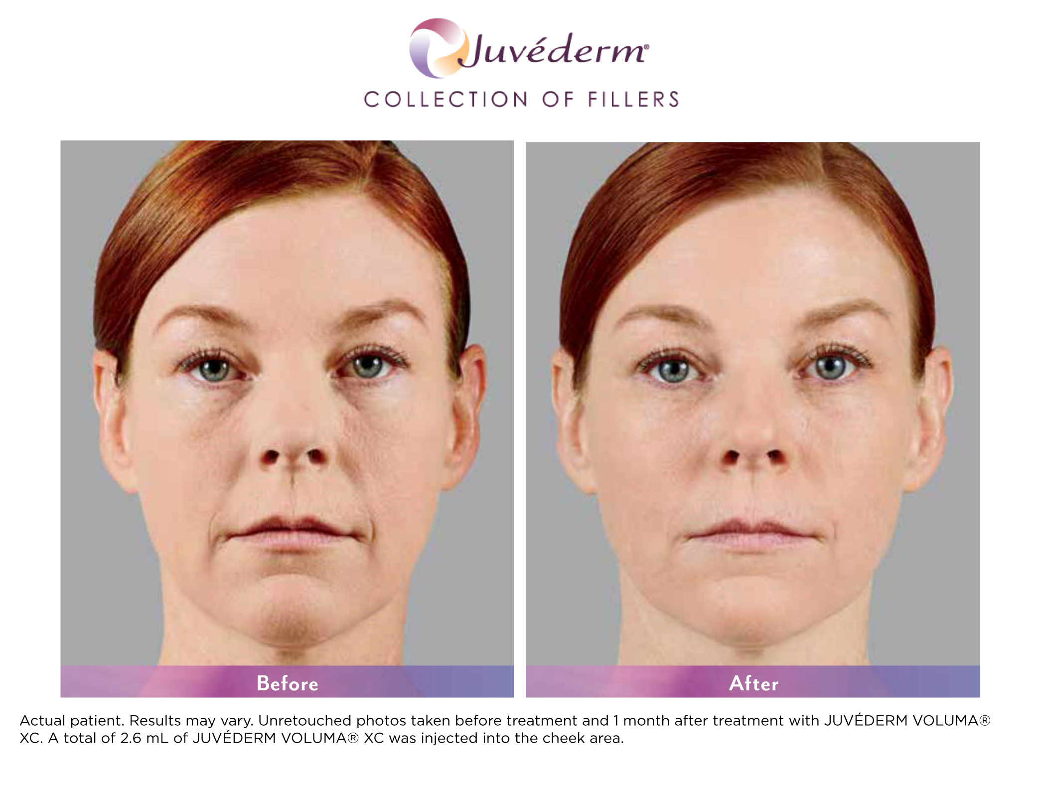 Botox + Fillers | INTERLOCKS | Salon, MedSpa, Wellness | Newburyport MA